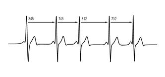 alianzas ritmo cardiaco